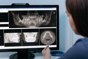 7 Tips for Surviving Wisdom Tooth Extraction